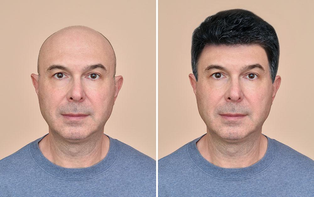 Kellik Tedavisi İçin En Doğal Protez Saç Çeşitleri Oscar HairDesing Farkıyla!